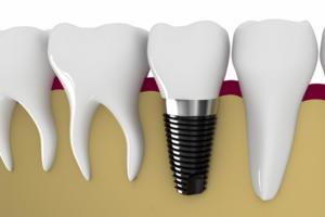 Cấy ghép implant là gì?  Kiến thức về cấy ghép răng implant bạn cần biết