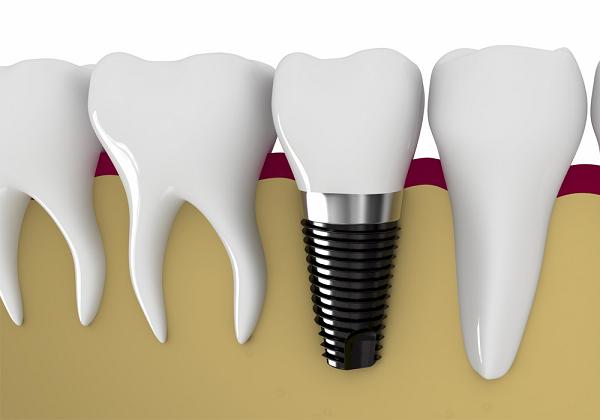implant là gì,implant nghĩa là gì,có nên cấy ghép implant,nên cấy ghép implant ở đâu,cấy ghép implant là gì,cấy ghép răng implant,trồng răng implant là gì,có nên trồng răng implant,cấy ghép implant có tốt không,cấy ghép implant uy tín,cấy ghép răng implant là gì,cắm implant là gì,trồng implant,có nên làm răng implant,cắm implant ở đâu,trụ implant là gì,trồng răng là gì,implant nha khoa là gì,cấy implant là gì,răng implant là gì