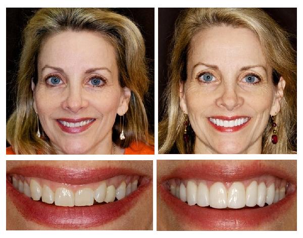 dán sứ veneer có cần mài răng không