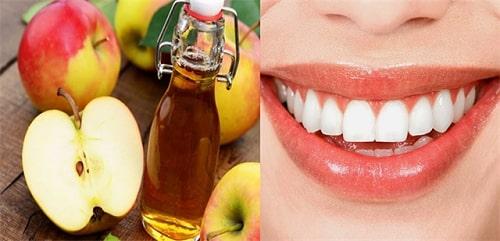Phương pháp tẩy trắng răng tại nhà với táo