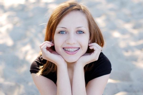 quy trình niềng răng như thế nào,quy trình niềng răng móm,quy trình niềng răng khểnh,các quy trình niềng răng,quy trình niềng răng thưa,quy trình niềng răng hô,quy trình niềng răng mắc cài,quy trình niềng răng mắc cài sứ,quy trình niềng răng