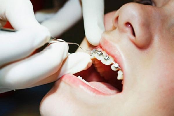 quy trình niềng răng như thế nào,quy trình niềng răng móm,quy trình niềng răng khểnh,các quy trình niềng răng,quy trình niềng răng thưa,quy trình niềng răng hô,quy trình niềng răng mắc cài,quy trình niềng răng mắc cài sứ,quy trình niềng răng,các bước niềng răng hô,các bước niềng răng,quá trình niềng răng