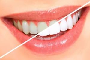 Khám phá 5 phương pháp tẩy trắng răng tại nhà hiệu quả