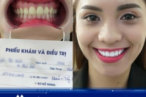 Hình ảnh khách hàng tẩy trắng răng Laser Whitening