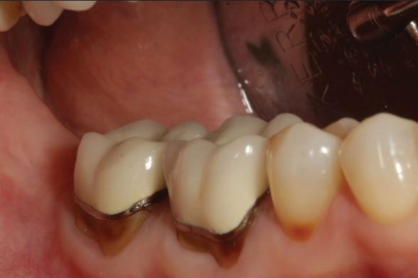 răng chụp sứ bị nhức, bọc răng sứ bị nhức, bọc răng sứ khó chịu, bọc răng sứ bị đau nhức, bọc răng sứ bị đau, bọc răng sứ không khít, răng sứ bị đau, răng bọc sứ bị nhức, răng bọc sứ bị đau, sau khi bọc răng sứ bị đau nhức, cảm giác sau khi bọc răng sứ, trồng răng sứ bị nhức, đau răng sau khi bọc sứ, đau nhức sau khi bọc răng sứ, bọc răng sứ nhai bị đau, bọc răng sứ và những biến chứng khó lường, bọc răng sứ nhai bị cộm, lắp răng sứ bị đau