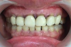 Bọc răng sứ phần chân răng bị hở ra ảnh hưởng gì tới sức khỏe? Bác sĩ trả lời