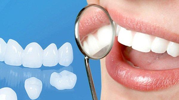 chân răng bị hở,chân răng sứ bị hở,bọc răng sứ phần chân răng bị hở,bọc răng sứ bị hở chân răng,bọc răng sứ bị lỗi,bọc răng sứ bị hở,răng bọc sứ bị hở,răng sứ bị hở,bọc răng sứ bị hở lợi