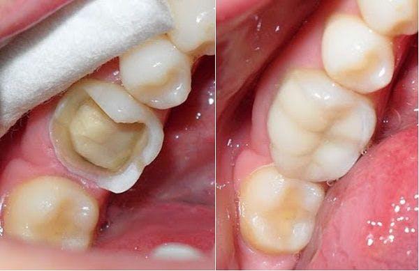 Bọc răng sứ bị sâu