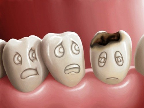 bọc răng sứ bị sưng lợi, răng bọc sứ bị sưng nướu, làm răng sứ bị sưng lợi