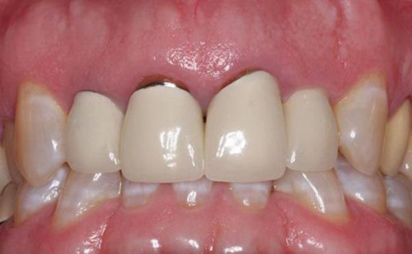 chân răng bị hở, chân răng sứ bị hở, bọc răng sứ phần chân răng bị hở, bọc răng sứ bị hở chân răng, bọc răng sứ bị lỗi, bọc răng sứ bị hở, răng bọc sứ bị hở, răng sứ bị hở, bọc răng sứ bị hở lợi, chân răng bị hở lợi, bị hở cổ chân răng, tại sao bị hở chân răng, bị tụt lợi hở chân răng, lấy cao răng bị hở chân răng, bị hở kẽ chân răng, nguyên nhân bị hở chân răng, bọc răng sứ phần chân răng bị hở, chân răng bị hở lợi, bọc răng sứ bị hở chân, bị tụt lợi hở chân răng, làm gì khi bị hở chân răng, tại sao lại bị hở chân răng