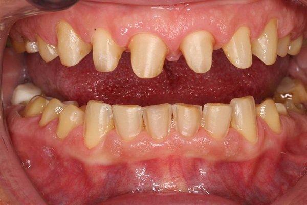 sau khi bọc răng sứ bị đau nhức, bọc răng sứ xong bị đau, răng bọc sứ bị đau, đau răng sau khi bọc sứ, bọc răng sứ bị đau nhức, rang su bi dau nhuc, biến chứng sau khi bọc răng sứ, bọc răng sứ bị đau, đau nhức sau khi bọc răng sứ
