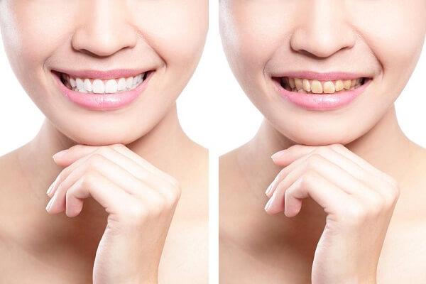 Tác hại của bọc răng sứ