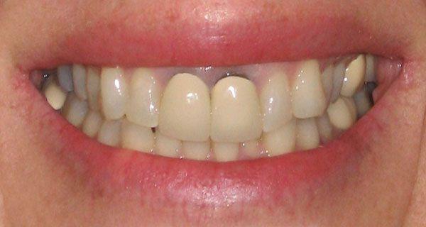 bọc răng sứ bị tụt lợi,răng bọc bị tụt lợi,hậu quả của việc bọc răng sứ,hậu quả của việc làm răng sứ, làm răng sứ bị tụt lợi