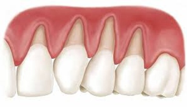 làm răng sứ bị tụt lợi, bọc răng sứ bị tụt lợi,răng bọc bị tụt lợi,hậu quả của việc bọc răng sứ,hậu quả của việc làm răng sứ