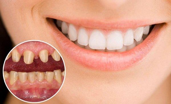 gắn răng sứ bị hôi, chân răng sứ bị hôi, làm răng sứ bị hôi, làm cầu răng bọc răng sứ có bị hôi miệng không, bọc răng sứ có bị hôi miệng không, bọc răng sứ bị hôi miệng, tại sao bọc răng sứ bị hôi miệng, tại sao bọc răng sứ lại bị hôi miệng, bị hôi miệng sau khi bọc răng sứ, bọc răng sứ hôi miệng, bọc răng sứ gây hôi miệng, bọc răng sứ có hôi miệng không, bọc răng sứ có gây hôi miệng không, răng sứ bị hôi, làm răng sứ có bị hôi miệng không, lý do bị hôi miệng, lý do hôi miệng, làm cầu răng bọc răng sứ có bị hôi miệng, răng sứ bị hôi phải làm sao, tại sao bọc răng sứ bị hôi, bọc răng sứ bị hôi, bọc răng sứ có bị hôi miệng