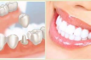 Bọc răng sứ có phải lấy tủy không? Trường hợp nào cần phải lấy tủy để bọc răng sứ?