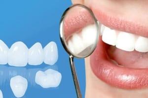 Bọc răng sứ giữ được bao lâu, có được bền, đẹp vĩnh viễn không ?