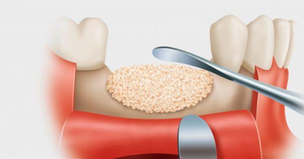 màng trắng sau khi nhổ răng,màng trắng sau khi nhổ răng là gì,xuất hiện màng trắng sau khi nhổ răng,dấu hiệu nhiễm trùng sau khi nhổ răng,sưng nướu sau khi nhổ răng,nhổ răng bị mưng mủ,nhiễm trùng,nhiễm trùng sau khi nhổ răng,nhiễm trùng sau nhổ răng,Mảng trắng sau nhổ răng,chỗ nhổ răng có màu trắng,vết nhổ răng có màng trắng,ổ răng sau nhổ có mùi hôi,nhổ răng bị nhiễm trùng,nhổ răng khôn bị nhiễm trùng,dấu hiệu bị nhiễm trùng khi nhổ răng khôn,dấu hiệu nhiễm trùng sau khi nhổ răng khôn,dấu hiệu của nhiễm trùng răng,dấu hiệu viêm nhiễm sau nhổ răng