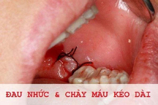 lớp màng trắng sau khi nhổ răng, màng trắng sau khi nhổ răng, vết nhổ răng khôn có màu trắng, màng trắng sau nhổ răng, vết nhổ răng có màng trắng, màng trắng sau khi nhổ răng khôn, xuất hiện màng trắng sau khi nhổ răng, màng trắng sau nhổ răng là gì
