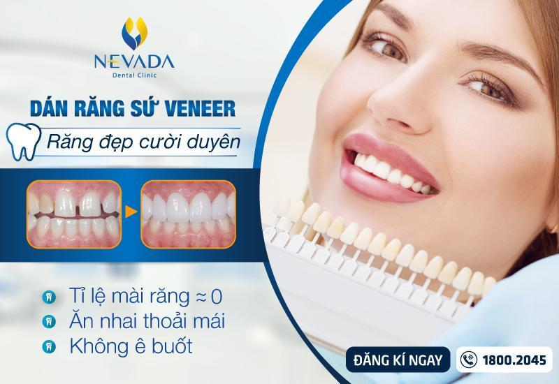 địa chỉ dán sứ veneer, dán sứ veneer ở đâu, địa chỉ dán răng sứ veneer, dán răng sứ veneer ở đâu tốt, dán răng sứ tp hcm, răng sứ veneer tp hcm, dán răng sứ ở đâu tốt nhất