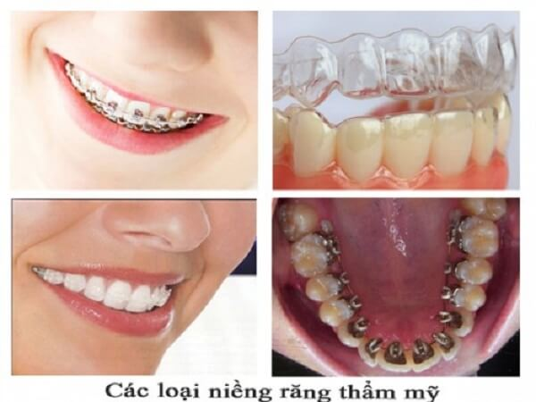 nên niềng răng hay bọc răng sứ,nên niềng răng hay bọc sứ,nên niềng răng hay bọc răng sứ webtretho,nên bọc răng sứ hay niềng răng,có nên bọc răng sứ webtretho,review bọc răng sứ,nên niềng răng hay làm răng sứ,niềng răng ở đâu tốt webtretho,bọc răng sứ webtretho,niềng răng hay bọc răng sứ,bọc răng sứ hay niềng răng,niềng răng hay bọc sứ tốt hơn,nên làm răng sứ hay niềng răng,niềng răng hay bọc sứ