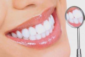 Nên niềng răng hay bọc răng sứ webtretho review và bác sĩ trả lời