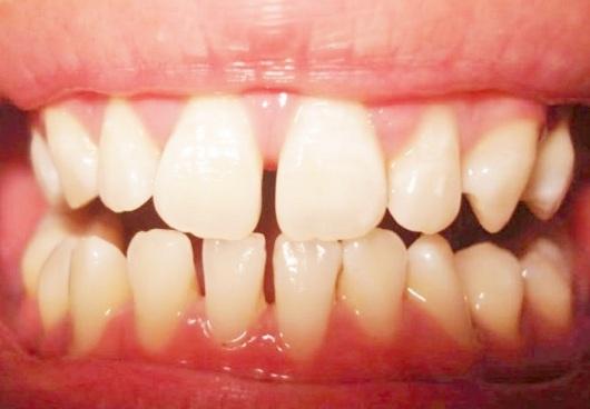 Răng cửa thưa hàm trên, Răng thưa hàm dưới