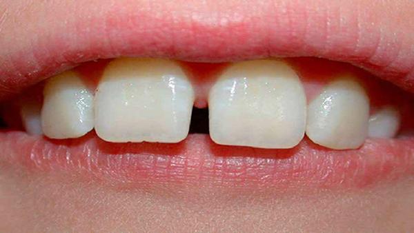 răng thưa,cải thiện răng thưa,niềng răng thưa mất bao lâu,răng cửa thưa trong tướng số,răng cửa thưa tướng số,răng thưa nói láo,răng thưa sướng hay khổ,răng thưa thừa của,xem tướng đàn ông răng thưa,trám răng thưa,niềng răng thưa,răng thưa phải làm sao,cách làm răng thưa khít lại tại nhà,cách làm răng hết thưa tại nhà,răng thưa có xấu không,răng thưa có ý nghĩa gì,răng nhỏ và thưa,răng thưa nói lên điều gì,niềng răng có ảnh hưởng đến tướng số,điều trị răng thưa,răng thưa tướng số,cách trị răng thưa tại nhà,răng thưa thì sao