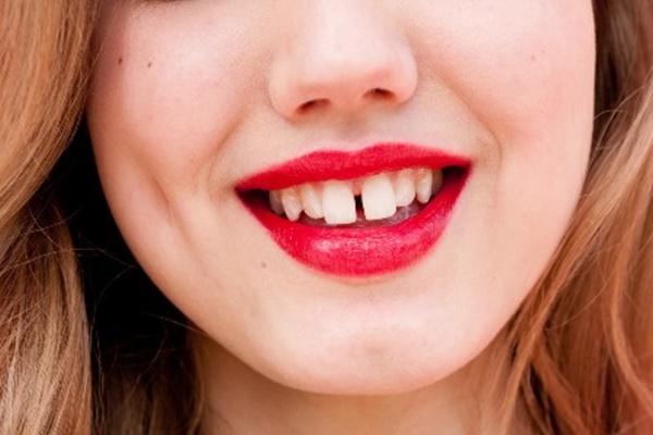 răng thưa,cải thiện răng thưa,niềng răng thưa mất bao lâu,răng cửa thưa trong tướng số,răng cửa thưa tướng số,răng thưa nói láo,răng thưa sướng hay khổ,răng thưa thừa của,xem tướng đàn ông răng thưa,trám răng thưa,niềng răng thưa,răng thưa phải làm sao,cách làm răng thưa khít lại tại nhà,cách làm răng hết thưa tại nhà,răng thưa có xấu không,răng thưa có ý nghĩa gì,răng nhỏ và thưa,răng thưa nói lên điều gì,niềng răng có ảnh hưởng đến tướng số,điều trị răng thưa,răng cửa to nói lên điều gì,răng thưa tướng số,cách trị răng thưa tại nhà, răng thưa phong thủy