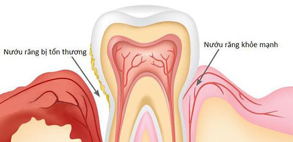 sưng nướu răng hàm,sưng nướu răng hàm trên,sưng lợi hàm trên,sưng lợi răng hàm trên,sưng nướu hàm trên,đau lợi hàm trên,viêm lợi hàm trên,sưng lợi hàm trên răng cửa,sưng nướu răng trong cùng hàm trên,viêm nướu răng hàm trên, sưng lợi răng hàm
