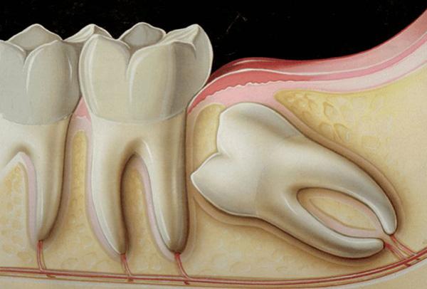 sưng nướu răng hàm trên, sưng lợi hàm trên, sưng lợi răng hàm trên, sưng nướu hàm trên, đau lợi hàm trên, viêm lợi hàm trên, sưng nướu răng trong cùng hàm trên, viêm nướu răng hàm trên, sưng lợi trong cùng hàm trên, sưng lợi răng hàm, bị sưng nướu răng trong cùng hàm trên, bị sưng lợi hàm trên, sưng chân răng hàm trên, đau nướu hàm trên