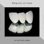 Bảng giá răng sứ Titan HOT nhất 2019