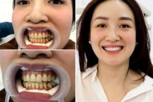 Tẩy trắng răng được bao lâu? Những câu hỏi thường gặp khi tẩy trắng