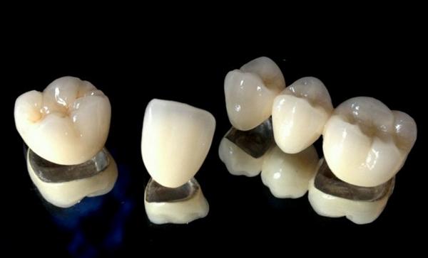 răng sứ titan sử dụng được bao lâu,giá răng sứ titan,bọc răng sứ titan giá bao nhiêu,bảng giá răng sứ titan,giá răng sứ titan 2018,răng sứ titan có mấy loại