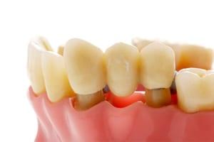 Bọc răng sứ bị cộm thì phải làm sao? Bác sĩ tư vấn nguyên nhân & giải pháp