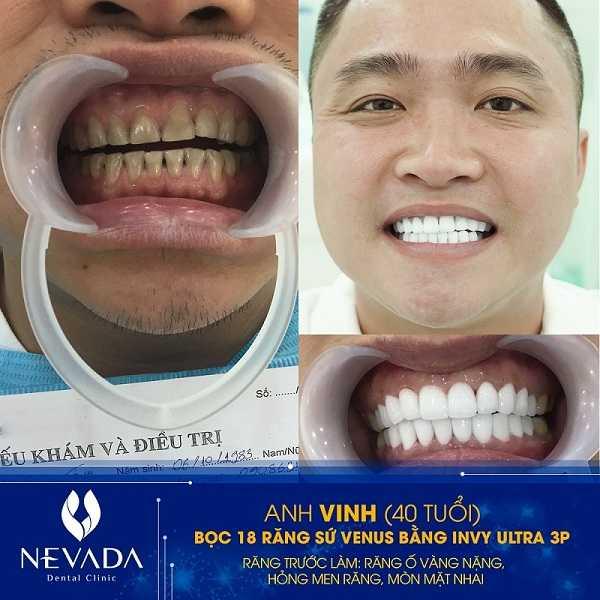 bọc răng sứ có đau không,làm răng sứ có đau không,bọc răng sứ đau không,bọc răng sứ có đau không webtretho,bọc răng có đau không,bọc sứ có đau không,làm răng bọc sứ có đau không