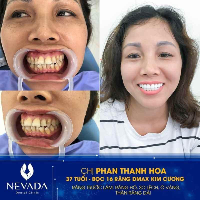 Bọc răng sứ có hết hô không, bọc răng sứ hai răng cửa, bọc răng sứ trị hô, bọc răng sứ 2 răng cửa bị hô, bọc sứ răng hô,bọc răng sứ giảm hô, làm răng sứ có hết hô không