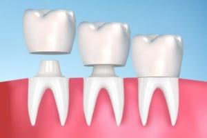Bọc răng sứ thẩm mỹ là gì và có tốt không? Lợi ích khi chọn bọc răng sứ là gì?