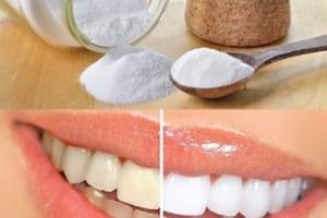 Bột Baking Soda làm trắng răng nhanh chóng chỉ trong vòng 2 phút