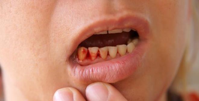 chảy máu chân răng là thiếu chất gì, chảy máu chân răng, bị chảy máu chân răng là thiếu chất gì, chảy máu chân răng có nguy hiểm không, chảy máu chân răng là thiếu vitamin gì, tự nhiên chảy máu răng, tự nhiên chảy máu chân răng, tự nhiên bị chảy máu chân răng,chân răng bị chảy máu, chảy máu chân răng bệnh gì, chảy máu chân răng là bệnh gì, bị chảy máu chân răng là bệnh gì, chảy máu răng là bệnh gì, tại sao bị chảy máu chân răng, răng bị chảy máu có mùi hôi, chảy máu chân răng thường xuyên, chảy máu chân răng không ngừng, cách trị chảy máu chân răng, chảy máu răng về đêm, chảy máu chân răng hôi miệng, chảy máu chân răng khi ngủ dậy, chảy máu chân răng khám ở đâu, bệnh chảy máu chân răng thiếu chất gì, bị chảy máu chân răng, thường xuyên bị chảy máu chân răng,bị chảy máu răng, thường xuyên chảy máu chân răng, hay chảy máu chân răng, chảy máu chân răng nhiều, bệnh chảy máu chân răng, điều trị chảy máu chân răng, chảy máu răng, hiện tượng chảy máu chân răng, chảy máu chân răng bệnh gì, đánh răng bị chảy máu chân răng, trị chảy máu chân răng, tại sao lại bị chảy máu chân răng, thường xuyên chảy máu răng, thường xuyên chảy máu chân răng là bệnh gì, chảy máu chân răng là bị gì, bị chảy máu chân răng là thiếu vitamin gì, chảy máu chân răng là dấu hiệu bệnh gì, vì sao bị chảy máu chân răng, chảy máu chân răng phải làm sao, chảy máu chân răng là biểu hiện của bệnh gì, hay bị chảy máu chân răng, hay bị chảy máu răng, chảy máu chân răng nên ăn gì, cách trị chảy máu chân răng, răng chảy máu thường xuyên, ảnh chảy máu chân, nướu răng bị chảy máu