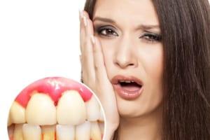 Bị chảy máu chân răng là thiếu chất gì và có nguy hiểm không?