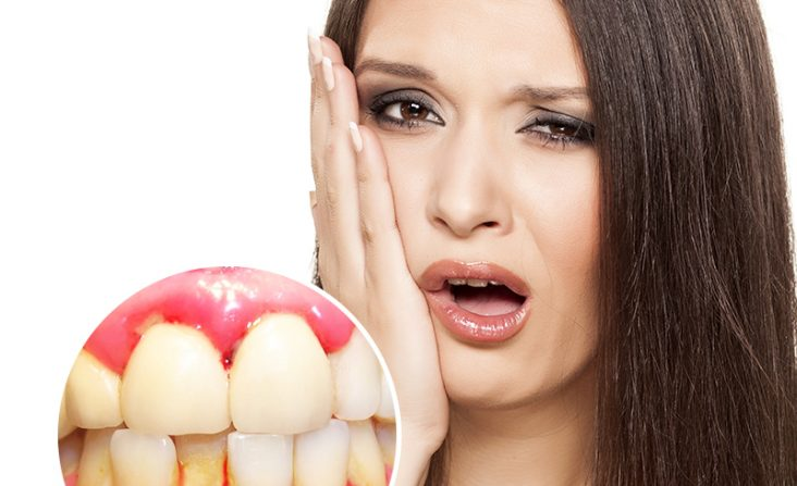 chảy máu chân răng là thiếu chất gì,chảy máu chân răng,bị chảy máu chân răng là thiếu chất gì,chảy máu chân răng có nguy hiểm không,chảy máu chân răng là thiếu vitamin gì,tự nhiên chảy máu răng,tự nhiên chảy máu chân răng,tự nhiên bị chảy máu chân răng,chân răng bị chảy máu,chảy máu chân răng bệnh gì,chảy máu chân răng là bệnh gì,bị chảy máu chân răng là bệnh gì,chảy máu răng là bệnh gì,tại sao bị chảy máu chân răng,răng bị chảy máu có mùi hôi,chảy máu chân răng thường xuyên,chảy máu chân răng không ngừng,cách trị chảy máu chân răng,chảy máu răng về đêm,chảy máu chân răng hôi miệng,chảy máu chân răng khi ngủ dậy,chảy máu chân răng khám ở đâu,bệnh chảy máu chân răng thiếu chất gì,bị chảy máu chân răng,thường xuyên bị chảy máu chân răng,bị chảy máu răng,thường xuyên chảy máu chân răng,hay chảy máu chân răng,chảy máu chân răng nhiều,bệnh chảy máu chân răng,điều trị chảy máu chân răng,chảy máu răng,hiện tượng chảy máu chân răng,chảy máu chân răng bệnh gì,đánh răng bị chảy máu chân răng,trị chảy máu chân răng,tại sao lại bị chảy máu chân răng,thường xuyên chảy máu răng,thường xuyên chảy máu chân răng là bệnh gì,chảy máu chân răng là bị gì,bị chảy máu chân răng là thiếu vitamin gì,chảy máu chân răng là dấu hiệu bệnh gì,vì sao bị chảy máu chân răng,chảy máu chân răng phải làm sao,chảy máu chân răng là biểu hiện của bệnh gì,hay bị chảy máu chân răng,hay bị chảy máu răng,chảy máu chân răng nên ăn gì,cách trị chảy máu chân răng,răng chảy máu thường xuyên,ảnh chảy máu chân,nướu răng bị chảy máu