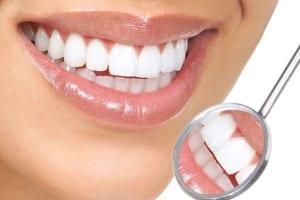 Có nên bọc răng sứ hay không? Tư vấn chuyên gia chuẩn nhất