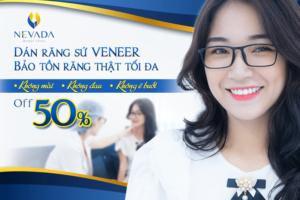 Tiêu chí tìm địa chỉ dán răng sứ Veneer ở đâu tốt nhất tại Hà Nội và TP.HCM ?