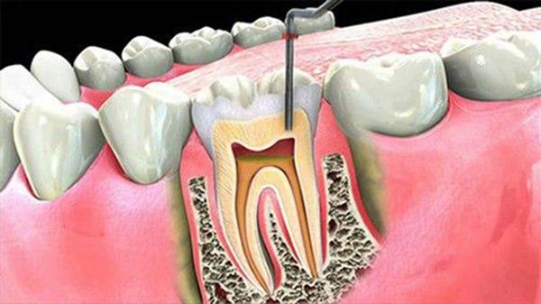 Thuốc diệt tủy răng