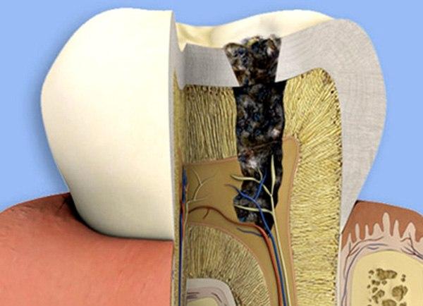 đặt thuốc diệt tủy răng, thuốc diệt tủy răng, đặt thuốc diệt tủy răng bao lâu, các loại thuốc diệt tủy răng, đặt thuốc diệt tủy răng có đau không, thuốc diệt tủy răng có độc không, nuốt phải thuốc diệt tủy răng, thuốc diệt tủy răng là gì, đặt thuốc diệt tủy răng khi mang thai, thuốc diệt tủy septodont, giá thuốc diệt tủy răng, thuốc diệt tủy asen, diệt tủy răng, đặt thuốc diệt tủy trong bao lâu, đặt thuốc diệt tủy răng bị nhức
