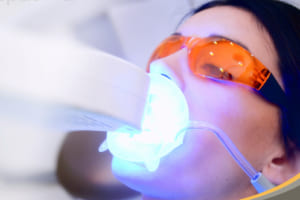 Địa chỉ tẩy trắng răng tại TPHCM và Hà Nội – Nha khoa tẩy răng uy tín số 1