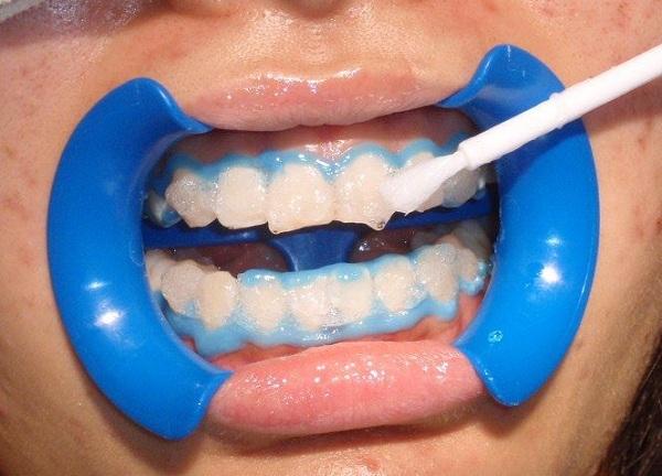 tẩy trắng răng ở đâu tốt, tẩy trắng răng ở đâu tốt webtretho, tẩy trắng răng ở đâu tốt giá bao nhiêu, tẩy trắng răng ở đâu tốt webtretho, tẩy trắng răng ở đâu tốt giá bao nhiêu, tẩy trắng răng ở đâu tốt nhất