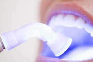 Dịch vụ tẩy trắng răng ở đâu tốt nhất, chi phí rẻ nhất