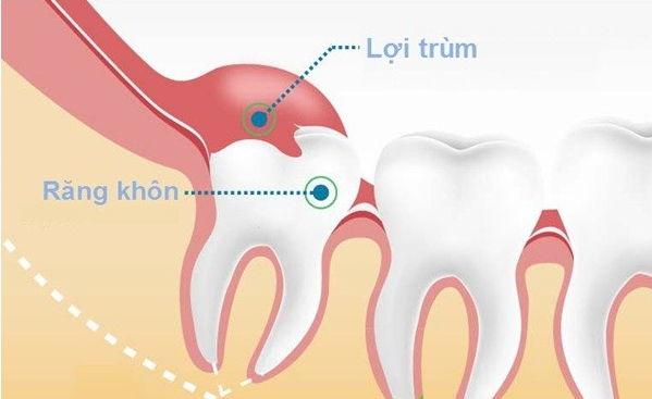 giá tiền nhổ răng khôn, chi phí nhổ răng khôn, nhổ răng khôn hàm dưới giá bao nhiêu, nhổ răng khôn giá bao nhiêu tiền, giá tiền nhổ răng khôn mọc lệch, nhổ răng khôn giá bao nhiêu, nhổ răng khôn giá tiền, nhổ răng khôn hàm trên giá bao nhiêu, nhổ răng khôn mọc lệch giá bao nhiêu, nhổ răng khôn bao nhiêu tiền, nhổ răng khôn mất bao nhiêu thời gian, giá nhổ răng khôn, địa chỉ nhổ răng khôn uy tín, nhổ răng khôn ở đâu an toàn, răng khôn mọc thẳng, răng khôn mọc ngầm, răng khôn mọc ngang, có nên nhổ răng khôn không, răng khôn mọc như thế nào